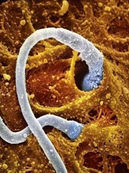 Jutaan-sel-sperma-berusaha-menembus-sel-telur
